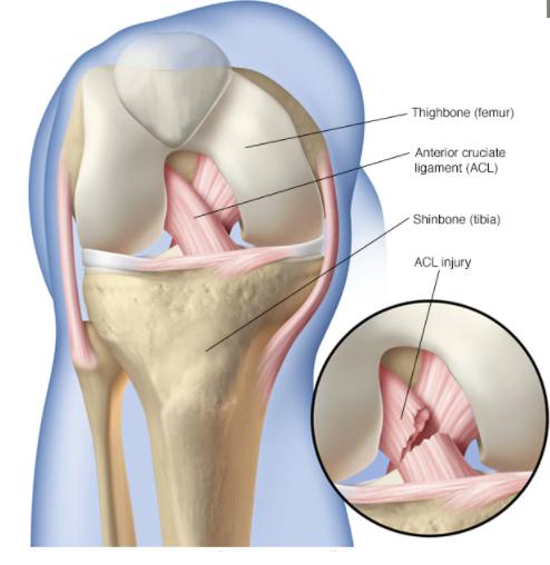 ACL Repair Treatment in pune